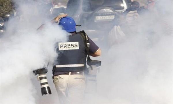صورة إصابة الصحفي أمجد الرقب بقنبلتين غاز في القدم